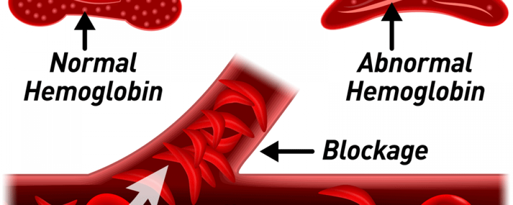 Sickle Cell: How to replace lost cells – Don advises